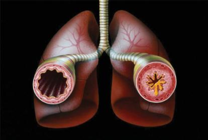 asma bronquios.png
