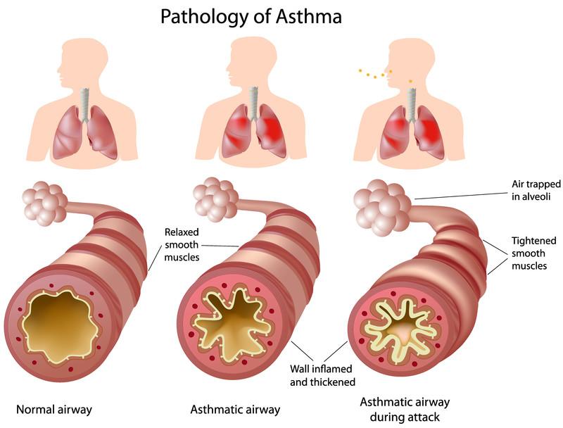 Bronquio normal Bronquio asmático Bronquio asmático durante una crisis