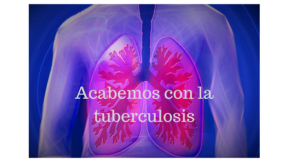 Acabemos con la tuberculosis